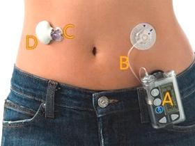 Diabetes y Nuevas Tecnologías