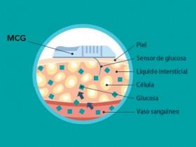 Sistemas de monitorización continua de glucosa