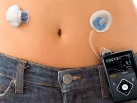 Nuevas tecnologías para el tratamiento de la diabetes