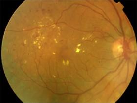 La retina: órgano diana de la diabetes